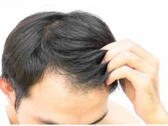 traitement-plasma-perte-cheveux-apres-opt