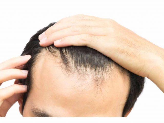 traitement-plasma-perte-cheveux-avant-opt
