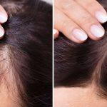 traitement pour la perte des cheveux chez la femme