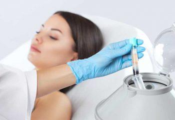 traitement PRP contre la chute de cheveux