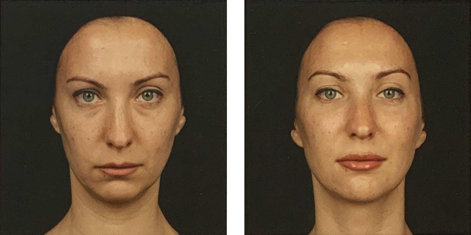 injections d'acide hyaluronique (Juvederm) pour corriger un visage d'aspect fatigué - avant-après