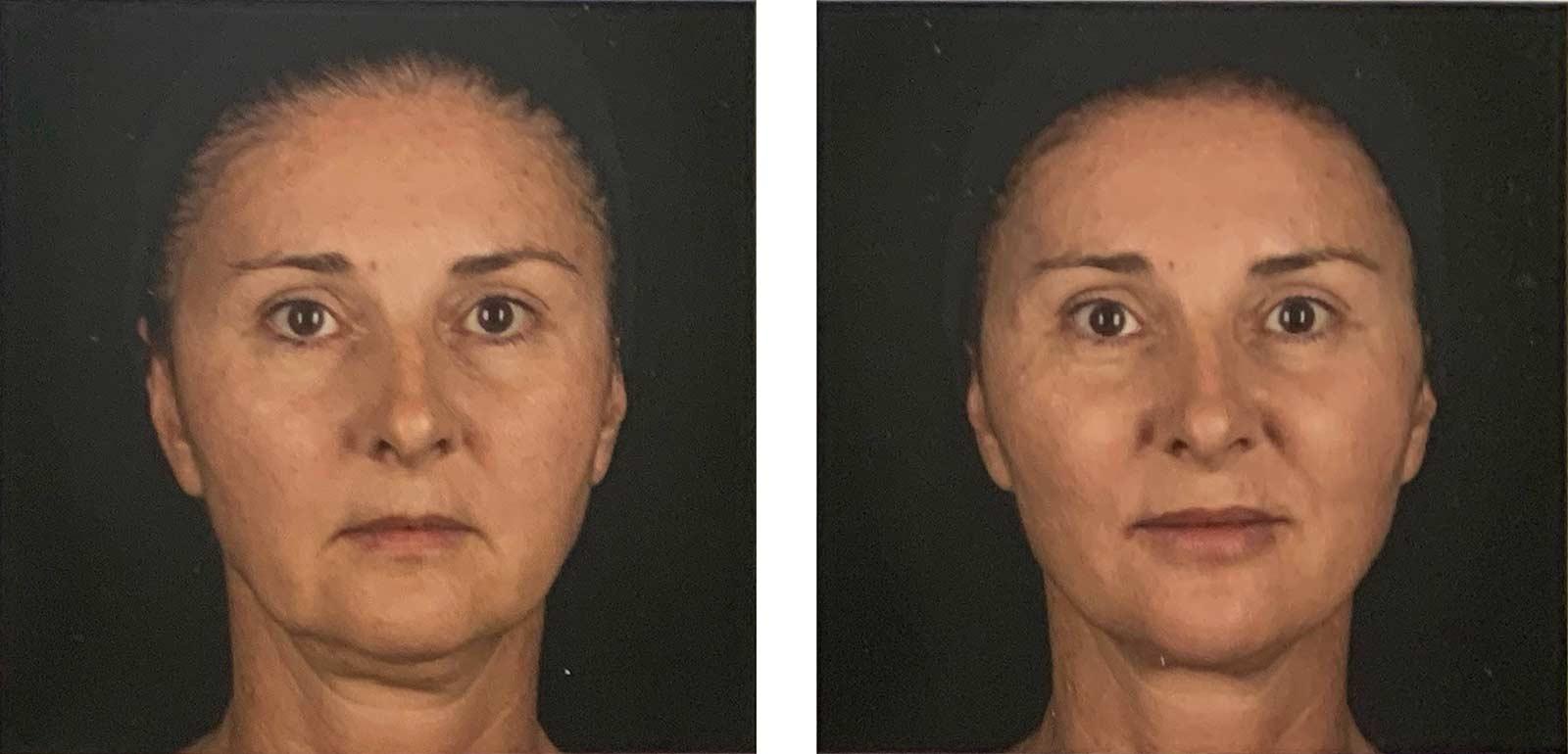 injections d'acide hyaluronique (Juvederm) pour corriger un visage flasque - avant-après