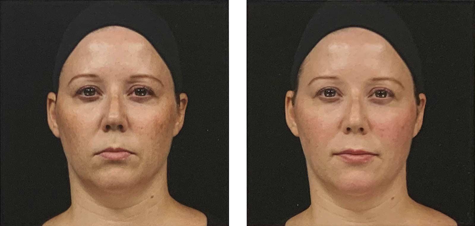 injections d'acide hyaluronique (Juvederm) pour corriger un visage d'aspect sévère - avant-après