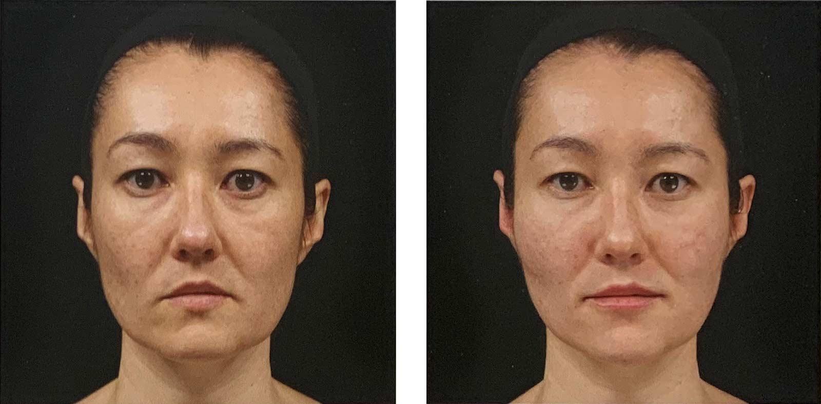 injections d'acide hyaluronique (Juvederm) pour corriger un visage d'aspect triste - avant-après